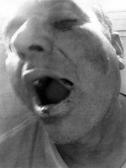 Jarbas Xavier dos se diz vítima de espancamento; GMs são denunciados