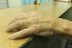 Aposentado mostra a mão machucada (Foto: Ana Paula Meneghetti)
