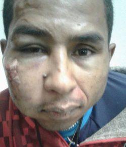 Antônio Marcos da Silva, de 32 anos, foi capturado no bairro Santa Clara (Foto: Divulgação)