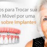 Próteses sobre implantes dentários: recupere sua autoestima e volte a sorrir