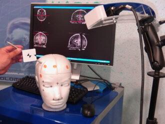 O aparelho que auxilia cirurgias cerebrais com menor invasão