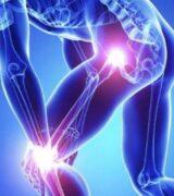 Dores articulares: Três suplementos fantásticos para artrose